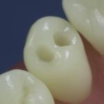 Dentes Diferenciados 16