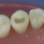 Dentes Diferenciados 57