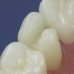 Dentes Diferenciados 56