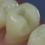 Dentes Diferenciados 15