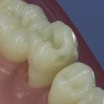 Dentes Diferenciados 55