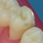 Dentes Diferenciados 54