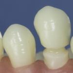 Dentes Diferenciados 184