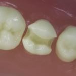 Dentes Diferenciados 52