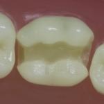 Dentes Diferenciados 14