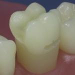 Dentes Diferenciados 13