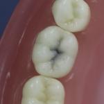 Dentes Diferenciados 154