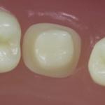 Dentes Diferenciados 49