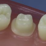Dentes Diferenciados 50