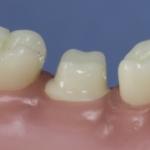 Dentes Diferenciados 183