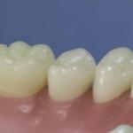 Dentes Diferenciados 182