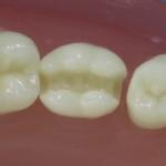 Dentes Diferenciados 48