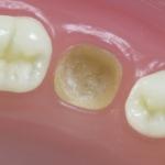 Dentes Diferenciados 148