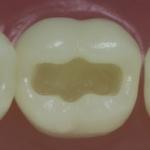 Dentes Diferenciados 12