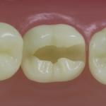 Dentes Diferenciados 47