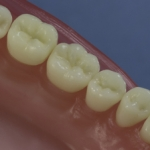 Dentes Diferenciados 181