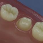 Dentes Diferenciados 180