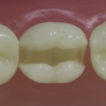 Dentes Diferenciados 45