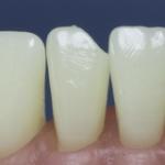Dentes Diferenciados 10