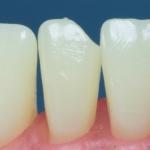 Dentes Diferenciados 9