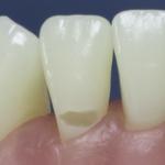 Dentes Diferenciados 8