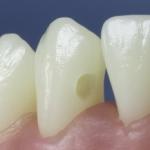 Dentes Diferenciados 7