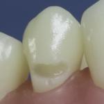 Dentes Diferenciados 6