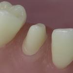 Dentes Diferenciados 44
