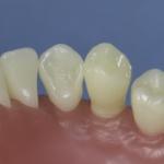 Dentes Diferenciados 179