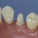 Dentes Diferenciados 178