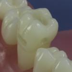 Dentes Diferenciados 4