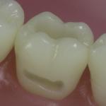 Dentes Diferenciados 2