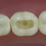 Dentes Diferenciados 3