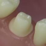 Dentes Diferenciados 42