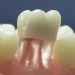 Dentes Diferenciados 37