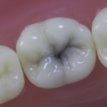 Dentes Diferenciados 36