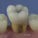 Dentes Diferenciados 35