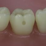 Dentes Diferenciados 40