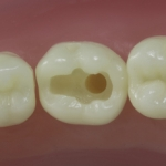 Dentes Diferenciados 41