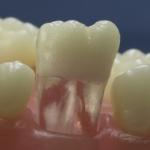 Dentes Diferenciados 39