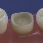 Dentes Diferenciados 146
