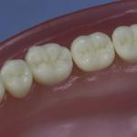 Dentes Diferenciados 177