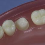 Dentes Diferenciados 176