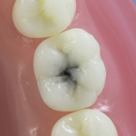 Dentes Diferenciados 153