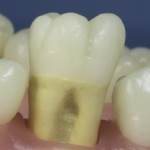 Dentes Diferenciados 38