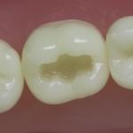 Dentes Diferenciados 1