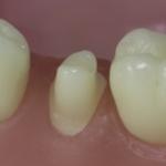 Dentes Diferenciados 53